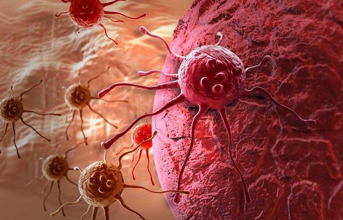 Много фото раком, что делать с огромными сиськами